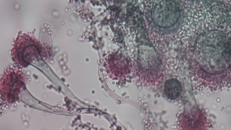 Detection of Galactomannan Antigen Fungal Biomarkers Scheme…
